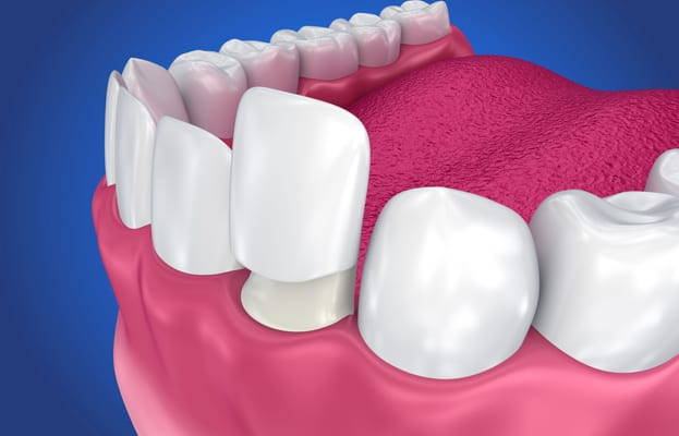 Great Reasons To Choose Austin Family Dentistry For Porcelain Crowns 1