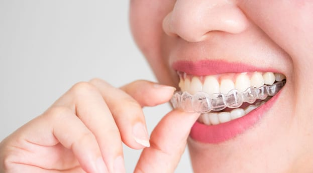 Invisalign® Technology Utilizes Clear Aligner Trays