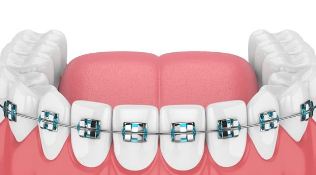 Top Reasons To Choose Austin Family Dentistry For Traditional Braces