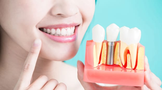 Top Reasons To Visit Austin Family Dentistry For Dental Implants