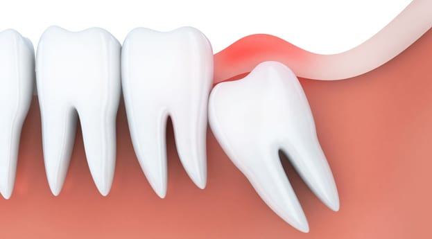 Top Reasons To Visit Austin Family Dentistry For Wisdom Teeth Removal