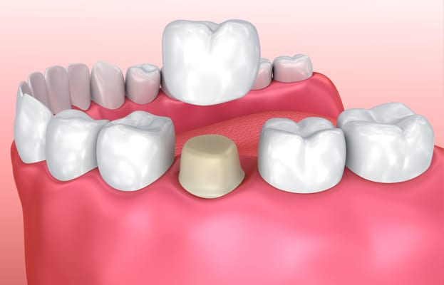 What You Should Know About Porcelain Crowns