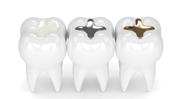 What Are The Benefits Of Tooth Colored Fillings