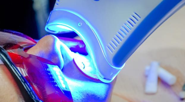 Who Is A Good Candidate For Professional Whitening
