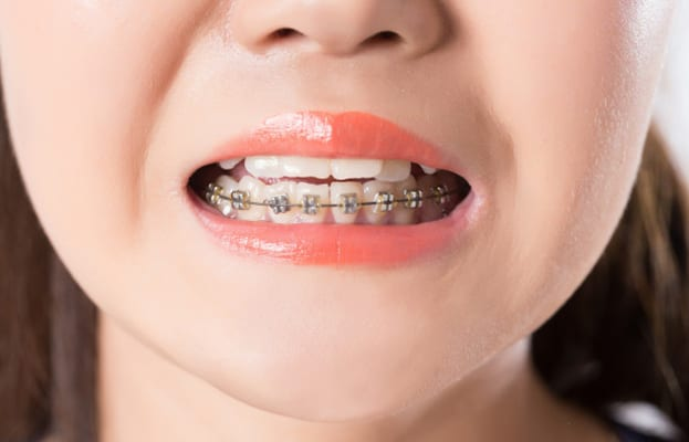 Why Is Early Orthodontic Intervention Important | Perspective Dental | Ashley Smitherman